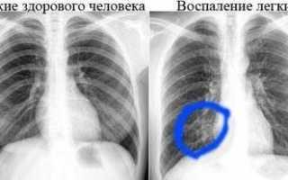 Рентгеноскопия кишечника: показания, техника проведения и результаты