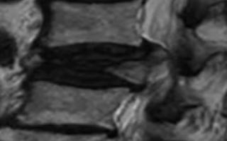 Компьютерная томография при переломе руки