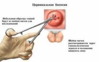 Биопсия папилломы результат