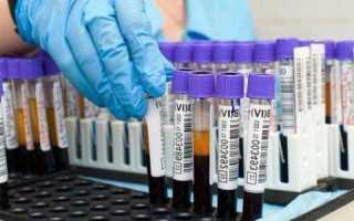 Низкий билирубин при анемии