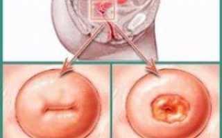 Дегенеративно дистрофические изменения шейки матки