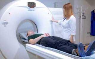 Компьютерная томография челюстно-лицевой области (к.т.ч.л.о.). что это такое?