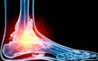Снимок в данной укладке применяют для диагностики различных заболеваний костей голени и при травмах