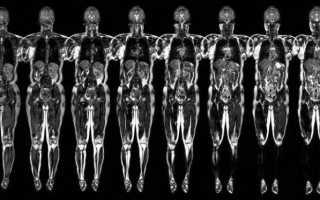Можно ли делать мрт с титановыми пластинами, стентами или коронками