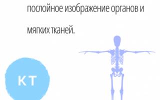 Расшифровка мрт головного мозга, позвоночника: аббревиатуры