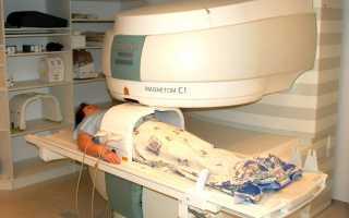 Магнитно-резонансная томография (мрт) органов малого таза