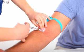Что нельзя делать перед сдачей крови: направление на анализ, подготовка и правила сдачи, соблюдение условий для получения правильного результата анализов крови