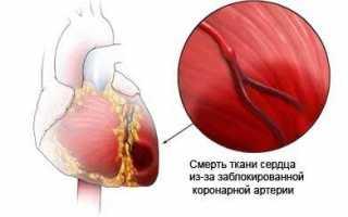 Норма аст в крови у женщин после 60 лет таблица