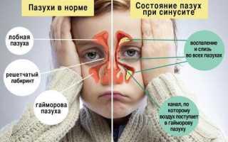 Рентгенография для детей