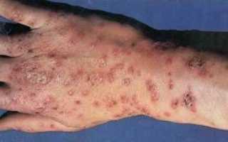 Антитела к эндомизию: описание и норма в крови