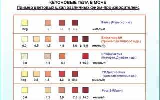 Клинический анализ мочи дома на тест-полосках: плюсы и минусы