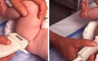 Как и где сделать рентген тазобедренных суставов ребенку