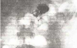 Рентген брюшной полости. рентгенологическая картина здоровых органов брюшной полости. рентгеновские методы в диагностике заболеваний органов брюшной полости