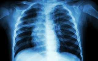 Как выглядит рентген здоровых легких