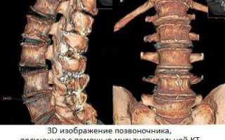 «золотой стандарт» диагностики органов брюшной полости