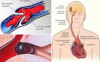 О приеме варфарина и контроле мно