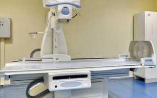 Компьютерная томография легких
