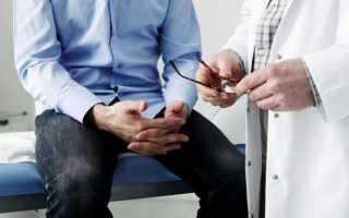 Что такое диагностика пцр и как ее проводят