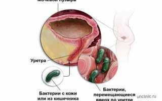Кровь в моче у детей: возможные причины, симптомы, диагностика и особенности