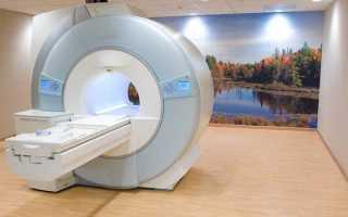 Компьютерная томография (кт) в клинике столица