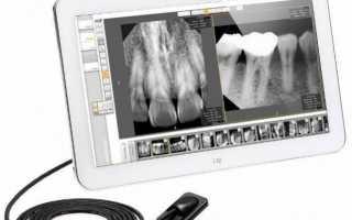 Рентген портативный для стоматологии
