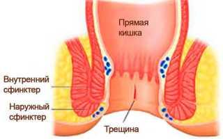 Мрт органов малого таза с контрастом