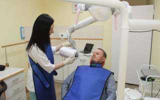Что такое прицельный снимок зуба и как он выполняется?