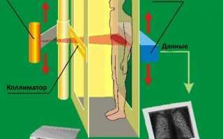 Роль досмотровой рентгеновской техники в таможенном контроле