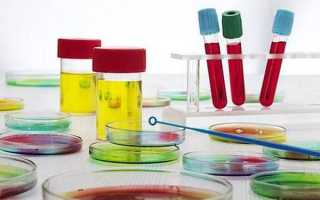 Какие анализы сдают «на рак»: лабораторная диагностика онкологических заболеваний
