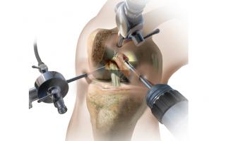 Хирургия и последующая реабилитация мениска коленного сустава