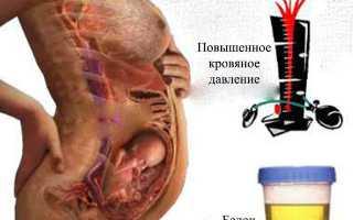 Суточный белок в моче при беременности норма