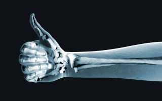 Рентген детям до года