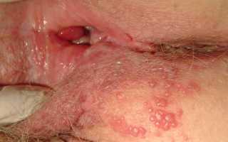 Врач дерматовенеролог