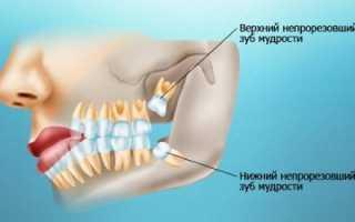 3d-снимок зубов: для чего нужно и что показывает