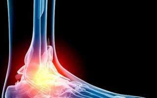 Как проходит мрт нижних конечностей: ноги, бедра, голени и стопы