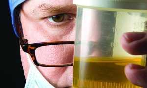 Что значат бактерии в моче у женщин, расшифровка результатов анализов и лечение