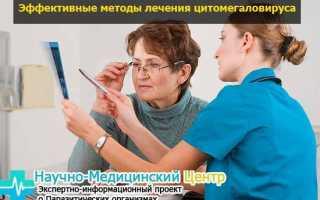 Цитомегаловирусная инфекция у женщин: причины, симптомы, последствия и лечение