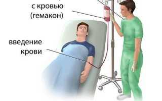 Как перерабатывают и хранят донорскую кровь