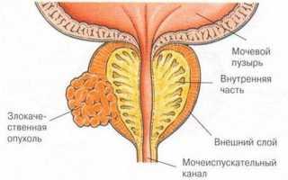 Как понизить инсулин в крови