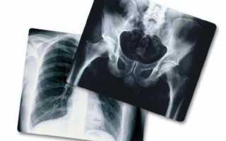 Характеристики и типы рентгеновской пленка
