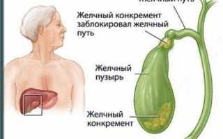 Повышенный билирубин общий,прямой или непрямой