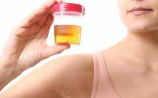 Детский пиелонефрит: симптомы, методы лечения и профилактики заболевания