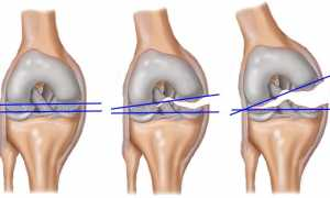 Отзывы после артроскопии коленного сустава: реабилитация и осложнения