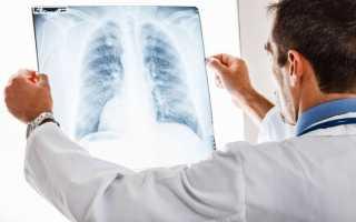 Как проводится рентген желудка с барием