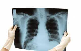 Рентген на дому в москве