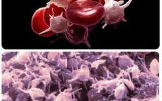 Тромбоциты повышены в крови у взрослого