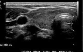 Узи щитовидной железы недорого: цены, адреса и запись онлайн
