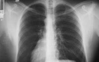Каким в норме должен быть рентген-снимок органов грудной клетки?