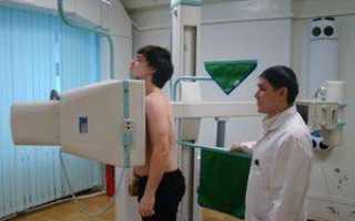 Расшифровка снимка рентгена легких: таблица кодов