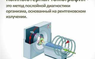 Что такое компьютерная томография и мрт: в чем разница